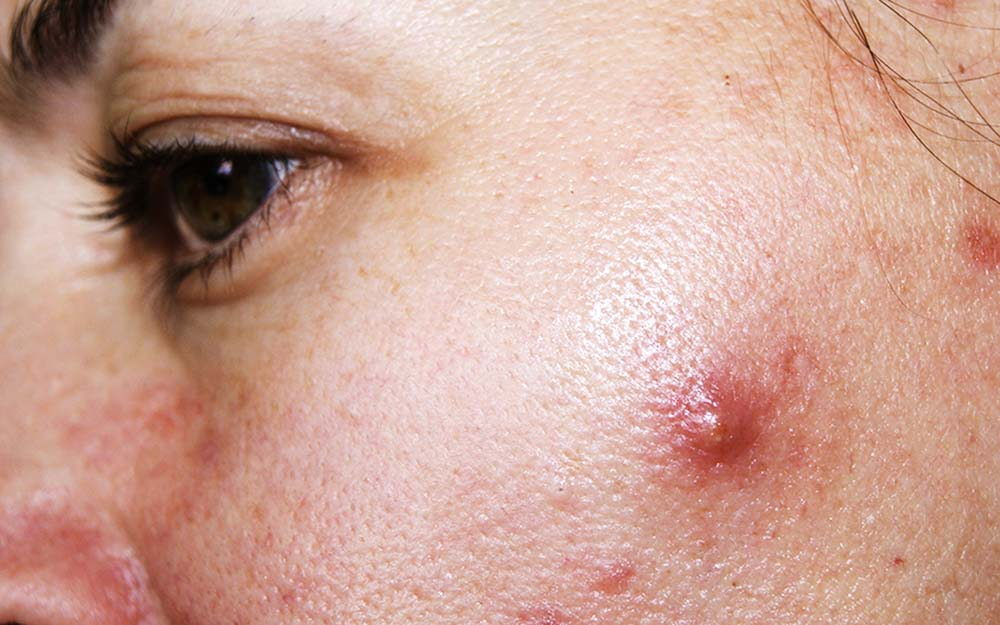 Cystic acne can cause ingrown hair lumps and cysts
