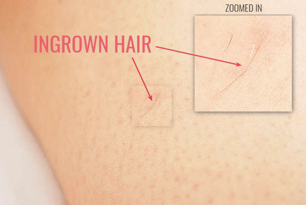 Shaving, waxing or epilating the wrong way can lead to hair curling back into the skin.