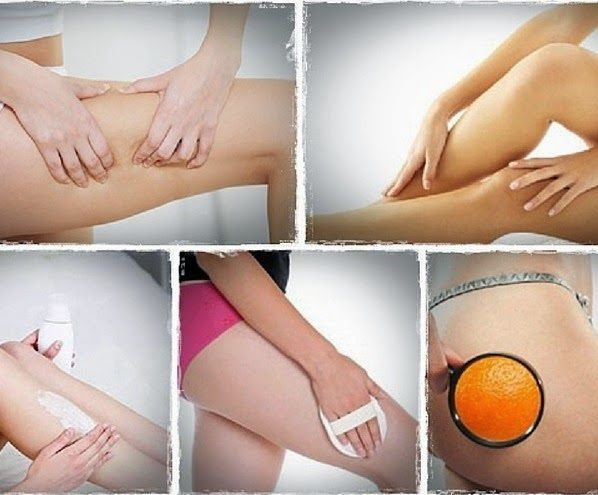 Blackheads On Legs Amp Inner Thighs Pictures Amp How To
