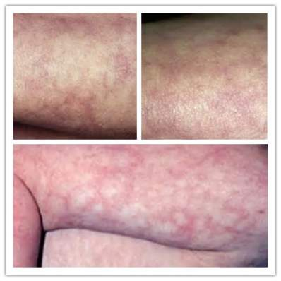 Mottled Skin Causes Pictures When Cold Sepsis In