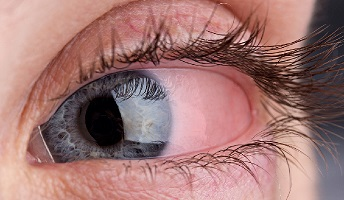 Pimple on eyelid causes getting rid of small bumps inside lower ocular rosacea causing bumps on eyelids ccuart Images