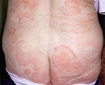Pimply rash on buttocks pictures
