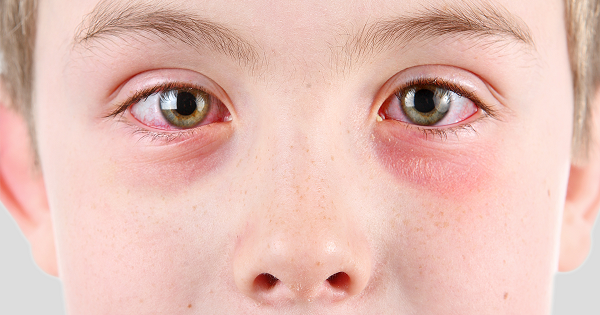 How-to-get-rid-of-pink-eye-fast-symptoms-include-redness-tearing-and-itching